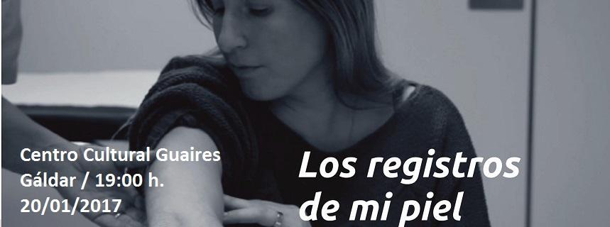 Psoriasis Las Palmas